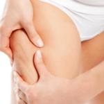 Donna vs Cellulite: ecco cosa fare per contrastarla